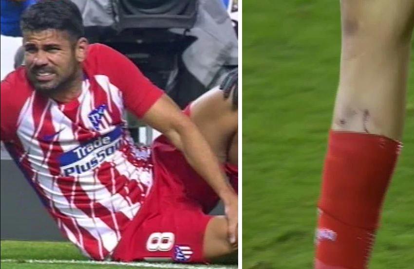 شاهد … دييغو كوستا يتعرض لإصابة في ظهوره الأول مع أتلتيكو مدريد