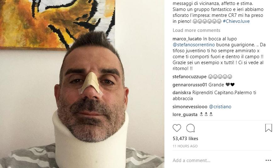 شاهد … حارس كييفو يعاني من كسر في أنفه بسبب رونالدو!